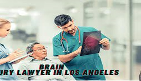 Reasons why one need to contact a Brain injury lawyer in Los Angeles